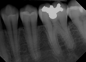 Digital Dental Image 5
