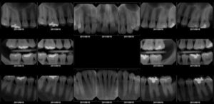 DreamSensor Dental Image Overview
